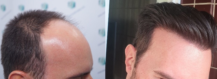 Hair transplant 3223 grafts (9295 hairs)